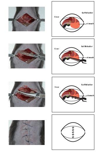 胃部分切除模型.png