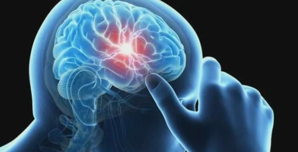 脑科学-网络9.png